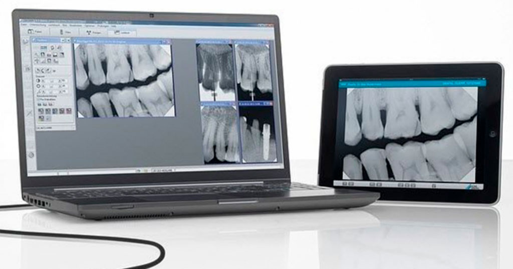 Raio x dentário digital